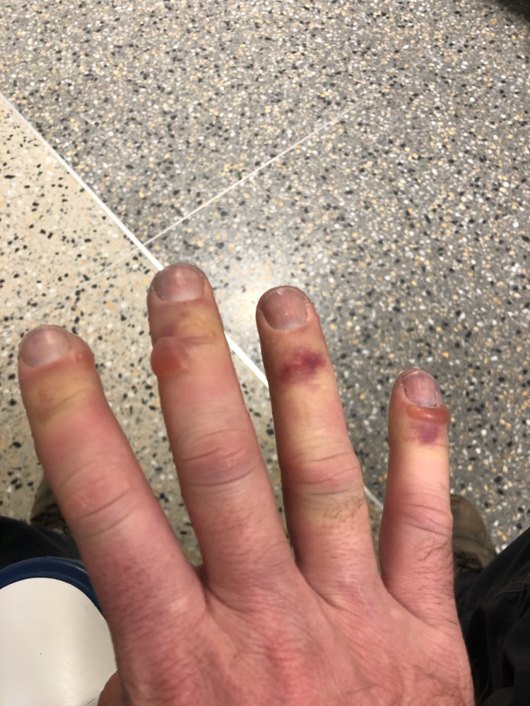 skiing frostbite fingers